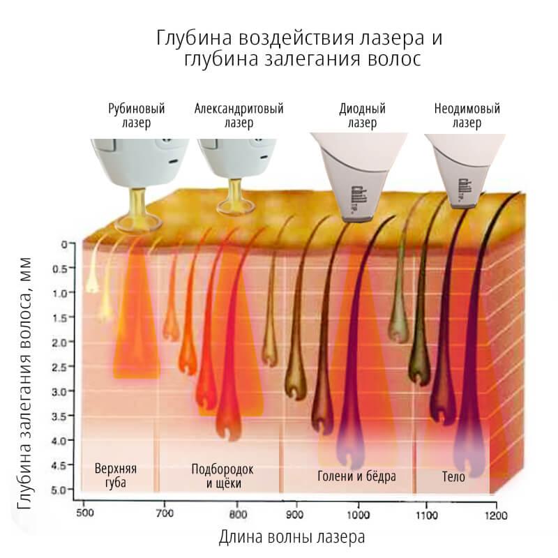 Kakoy vid lazera podhodit dlya litsa - Какой лазер лучше диодный или александритовый