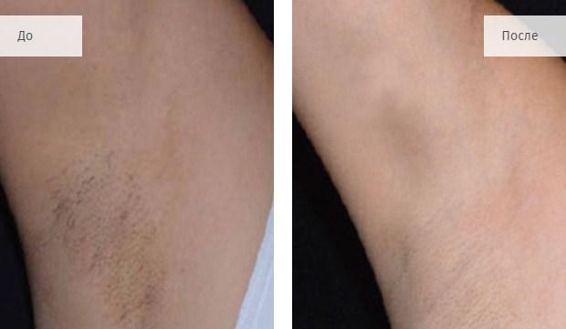 LightSheer DUET фото до и после