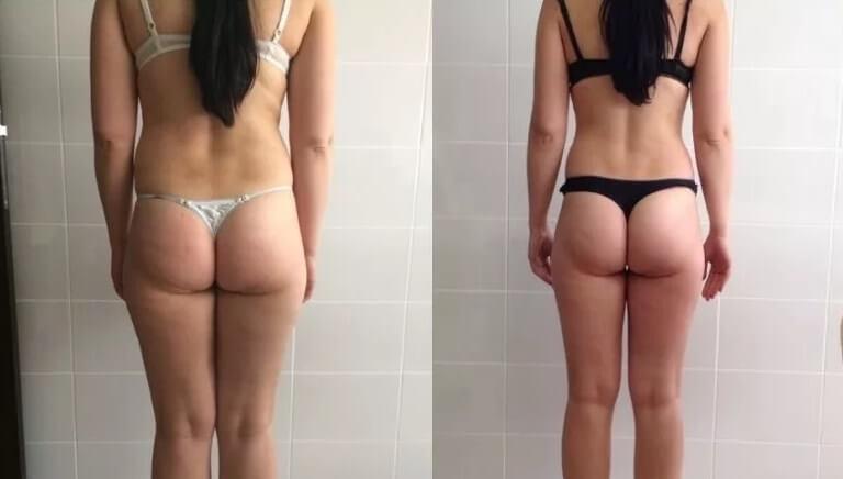 Эндосфера фото до и после