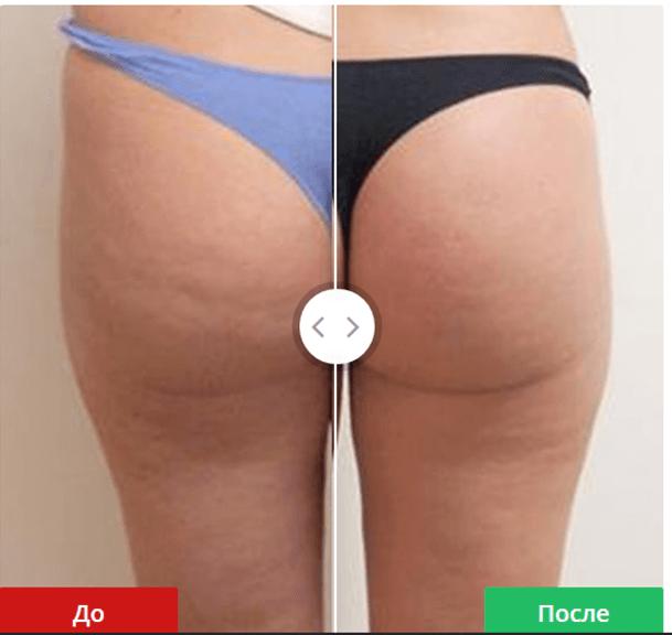 фото до и после vela shape