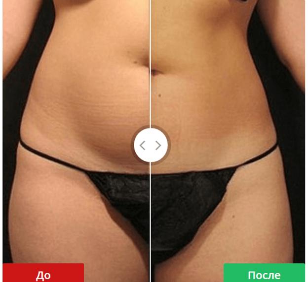 vela shape отзывы фото до и после