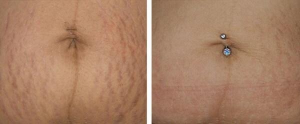 15769528477YfQPXnniz - Фраксель — лазерная терапия и омоложение кожи лица