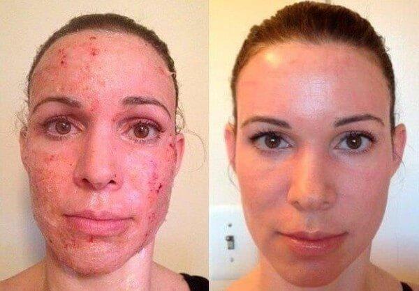1576952857t8GyyV2N4V - Фраксель — лазерная терапия и омоложение кожи лица