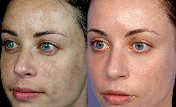 1576952863P30hCTc z1 - Фраксель — лазерная терапия и омоложение кожи лица