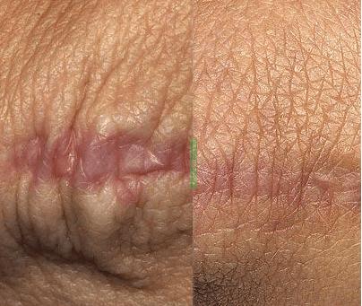 1576952869 SbL6W4KH8 - Фраксель — лазерная терапия и омоложение кожи лица
