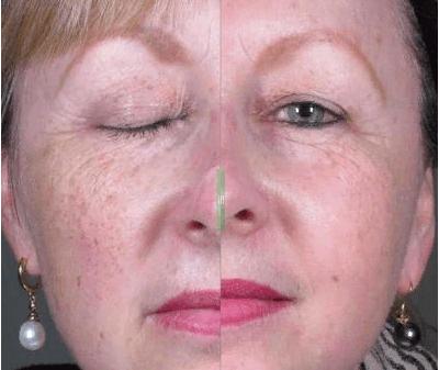 1576952875q39T C0PTs - Фраксель — лазерная терапия и омоложение кожи лица