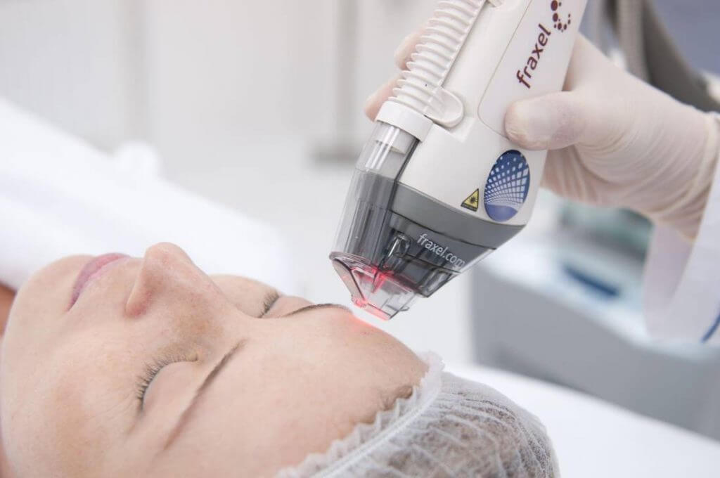 631053671 1024x680 - Фраксель — лазерная терапия и омоложение кожи лица