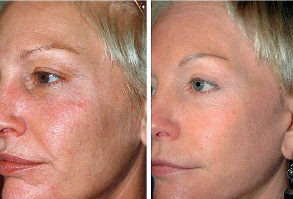mezoterapiya rezultaty do posle 2 min1 1024x696 - Фраксель — лазерная терапия и омоложение кожи лица