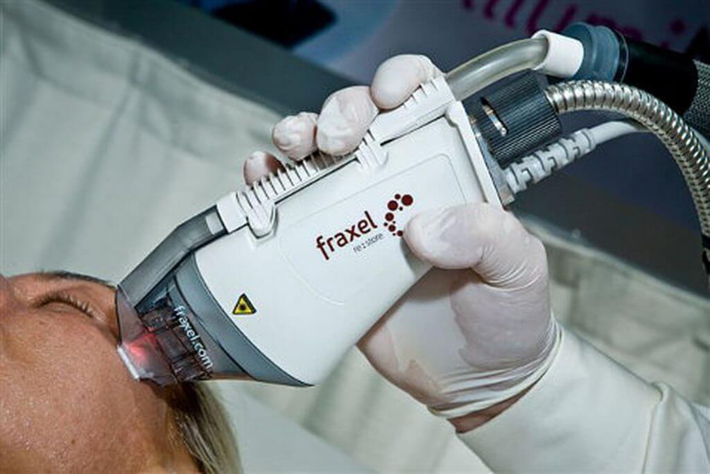 post 5afecda9ca92d1 1024x684 - Фраксель — лазерная терапия и омоложение кожи лица