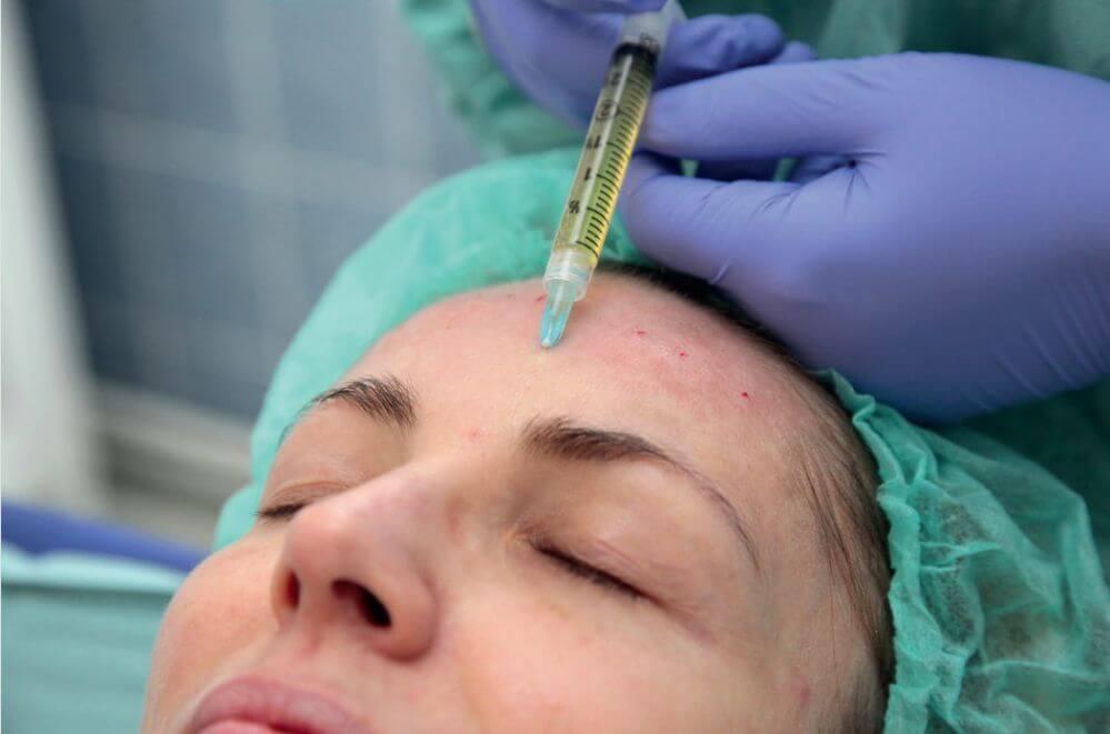 Plazmaterapie 8 aplikace1 - Плазмолифтинг для лица