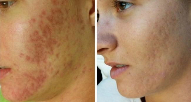 Krioterapiya dlya litsa do posle 1 - Криотерапия для лица